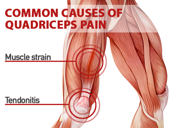 quad muscles strain tendinitis