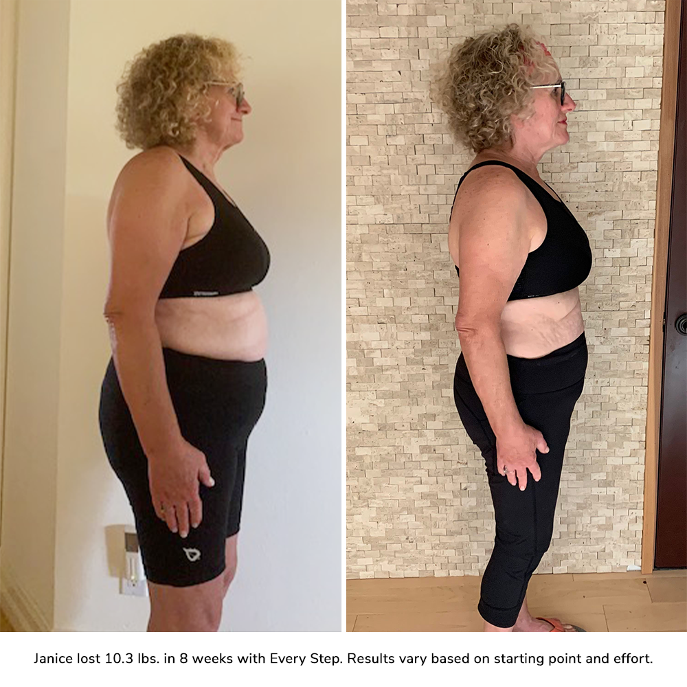 janice orlowski before and after
